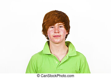 cabelo, menino, atraente, puberdade, vermelho