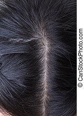 cabelo preto, com, dandruff, ligado, cabeça, close-up,...