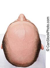 cabeza, hombre calvo