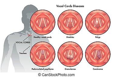 cabos, doenças, vocal