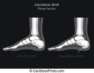 Calcaneal spur. Plantar fasciitis set. Medical desease ...