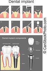Calcul, maladie, dentaire, Périodontique