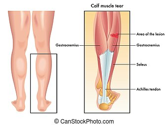 calf muscle tear - medical illustration of the symptoms of...