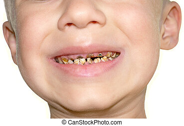 Calf's Teeth decay Toothache because of too many sugar in...