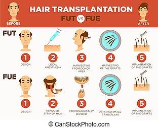 calvo, cosmetico, capelli, trapianto, chirurgia, procedura, ...
