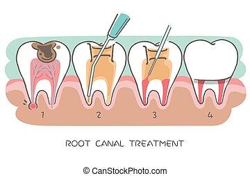 canal, racine, traitement, dent