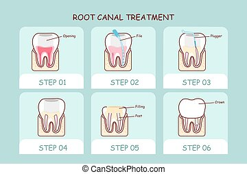 canale, dente, trattamento, cartone animato, radice