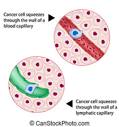 Cancer cell squeezes through vessel - Cancer cell squeezes...