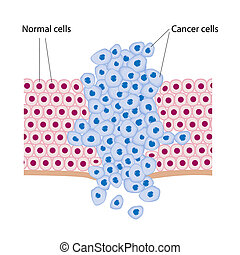 Cancer cells in a growing tumor, eps8
