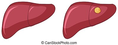 Cancer in human liver on white background