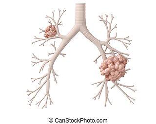 cancer poumon
