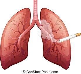 cancer poumon, fumée