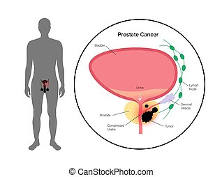cancer prostate, concept