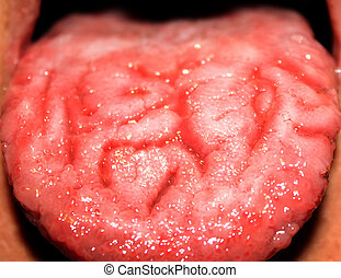 Candidiasis in the tongue. White coating. Fractured tongue. Thrush.