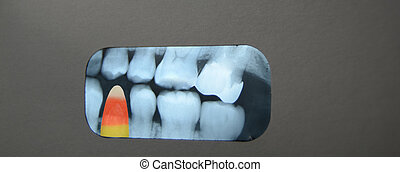 Candy in dental Xray - Candy corn in dental Xray.