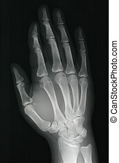 Xray hand - xray of a healthy right hand