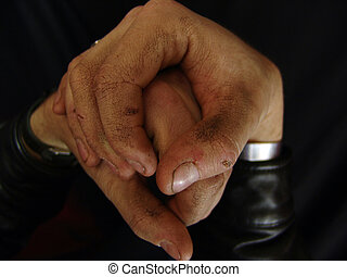 Distorted Poor Hands - close up of mans hands showing...