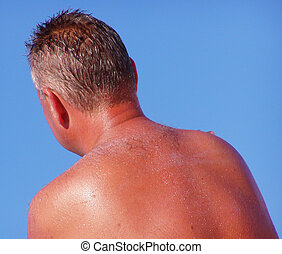 Sun tan roasted - The back of a man after sunbathing too...