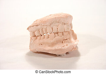 dental casting - plaster cast of teeth used for whitening...
