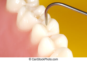 Dental Exam - Photo of Teeth and a Dental Probe. Dental...