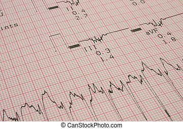 "cardiological test results #3, PHOTO DOSEN\""T CONTAIN..."