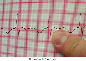 ECG 3 with finger