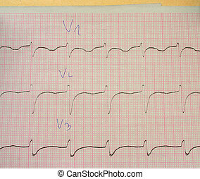 ECG - Real ECG with doctor\\\'s doctor\\\'s notes