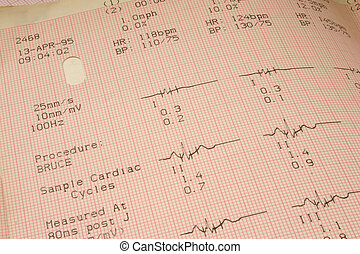 cardiological test r - NO PROTECTED MATERIAL