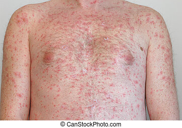 Chicken pox - Chickenpox on the body of adult