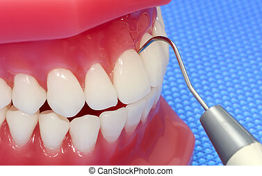 Dental Exam - Photo of Model Teeth