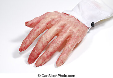 Bloody Hand - Photo of a Bloody Hand