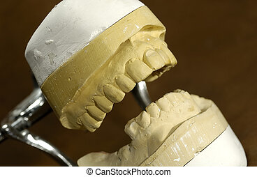 Dental Mold - Photo of a Dental Casting / Mold - Dental...