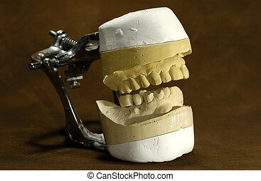 Dental Mold - Photo of a Dental Casting Mold - Dental...