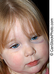 Abused II - Toddler female with black eye~Note: black eye is...
