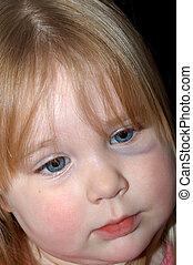 Abused II - Toddler female with black eye~Note: black eye is...