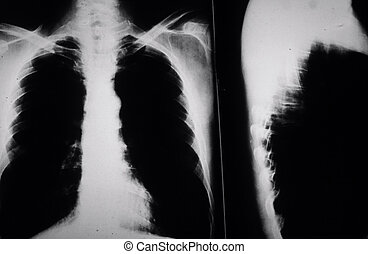 Smokers Lungs - X ray of smokers lungs with cancer