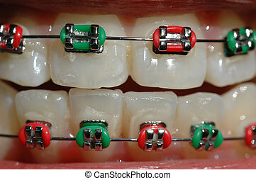 braces - teenager with braces of festive Christmas colour