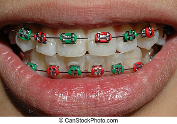 braces - Smile, Christmas is here. Teenager with festive...