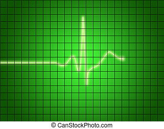 EKG signal on green screen.