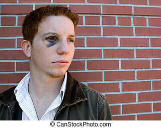 On the Mend - Young man with black eye that is starting to...