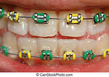 closeup of braces - closeup of teeth with green and gold...