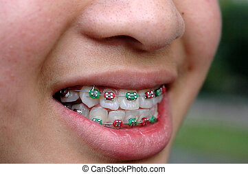 smiling face with colorful braces