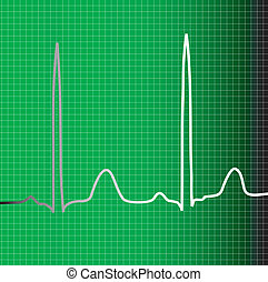 green ecg - A green ecg monitor with heart beat information