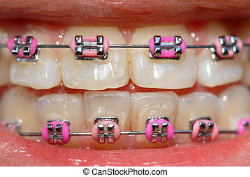 pink braces of a teenager