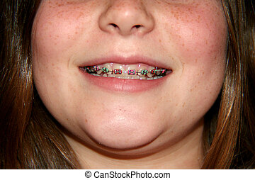 Braces - A young girl with braces.