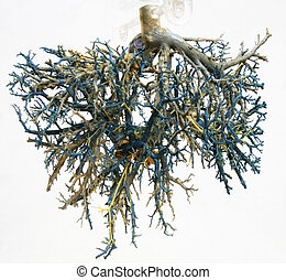 Tree of veins 1 - A cast of arteries / veins used for...