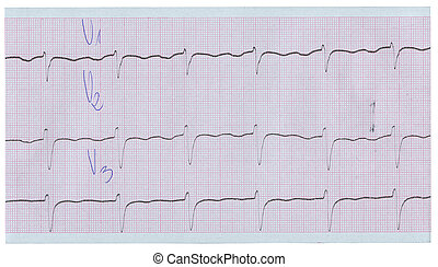 long stripe of ecg isolated on white