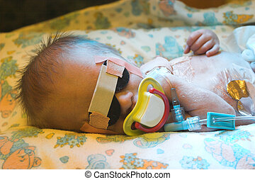 Treatment - One day old baby getting photo treatment against...