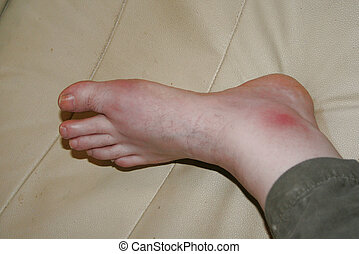 Gout attack - Example of a gout attack, (focus on foot),...
