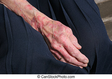 Sceriosis Skin Condition - Extreme sceriosis on the hand of...